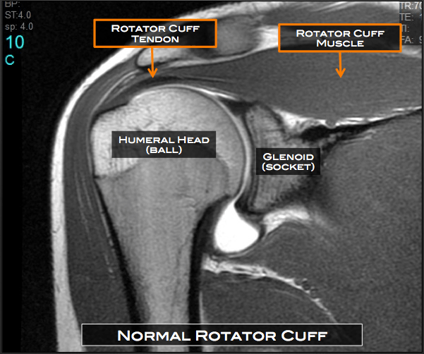 Shoulder Surgery Austin Tx Rotator Cuff Repair Cedar