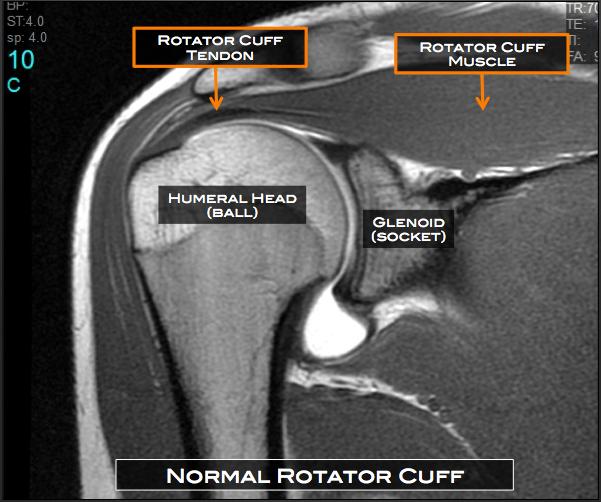 Rotator Cuff Tear Austin Tx Shoulder Surgery Austin Tx